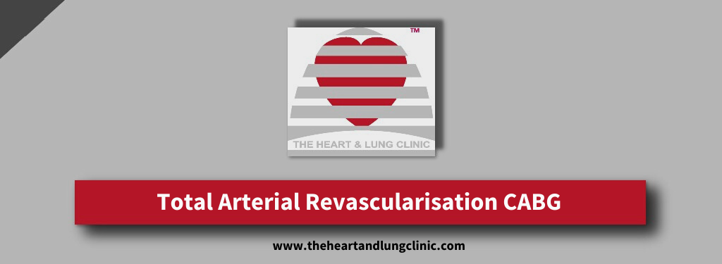 Total Arterial Revascularisation CABG